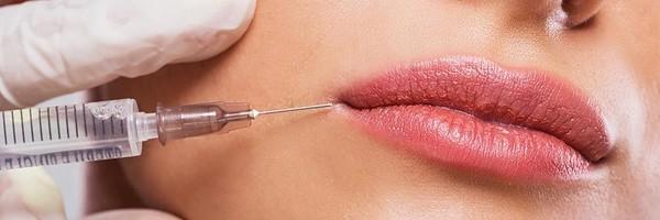 Botox Lip Filler